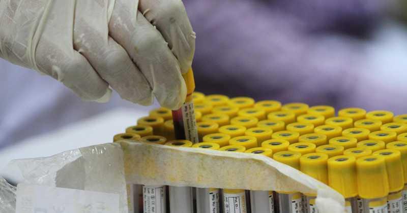 Препарат, останавливающий размножение коронавируса, создадут в России